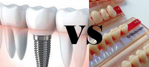 implantes dentales o protesis, cual es mejor