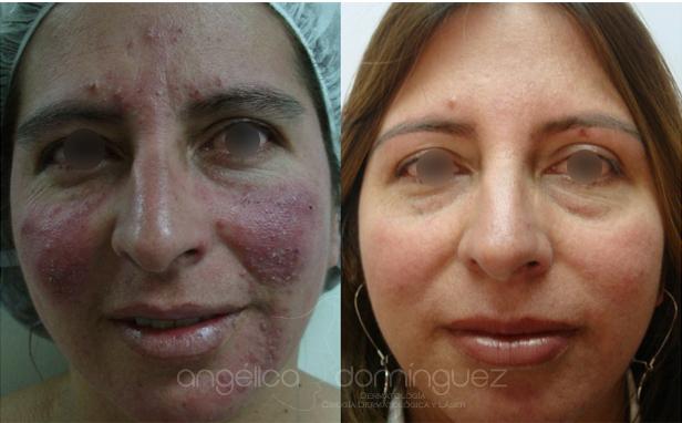 caso de cura de acné