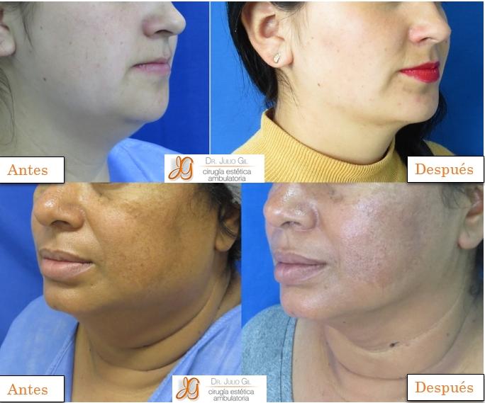 Bichectomia 3D para adelgazar la cara – reducción de cachetes ...